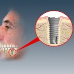 Schematisk teckning av applicerat implantat. Till detta skruvas sedan en individuellt framställd tandkrona